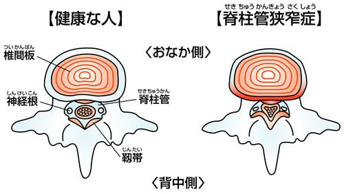 管 症 脊柱 狭窄
